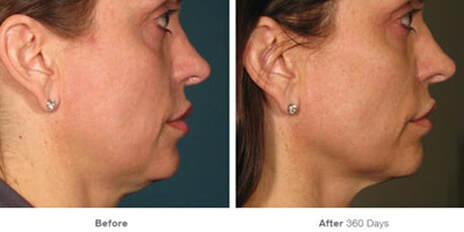 Ultherapy before and after pics