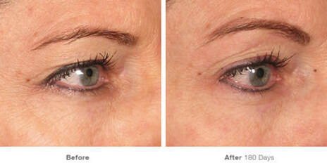 Ultherapy before and after 180 days eye pics