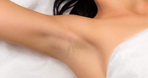 Laser hair removal for women